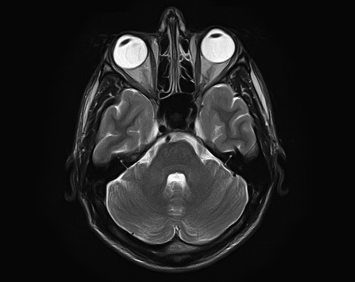 MRI Brain Scan Image - Mapping the Human Body - Atlas Obscura & Nat Geo